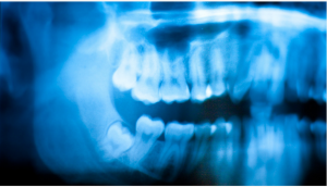 Getting wisdom teeth pulled, can cause relief from pain but is a painful process.